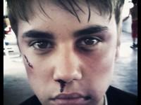 Justin Bieber slagen (Instagram)